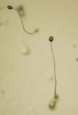Figure 1. Multicellular fruiting bodies of Dictyostelium discoideum.