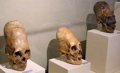 9456-paracas-skulls-3
