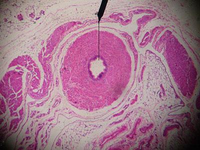Vas-histology
