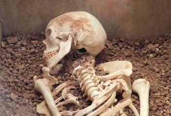 9541-skeleton