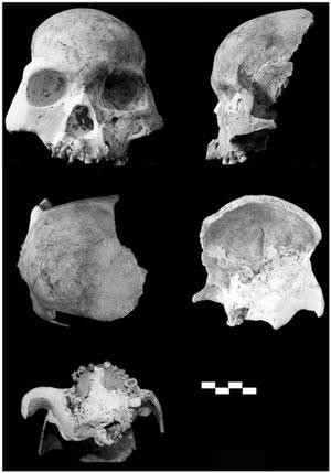 partial-skull