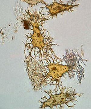Dinosaur-bone-cells