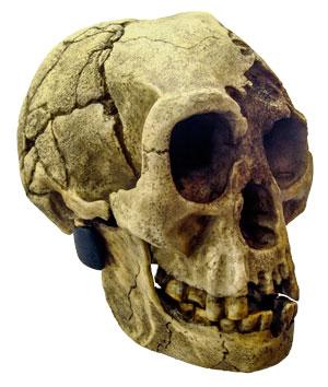 anatomist-hobbit-down-syndrome