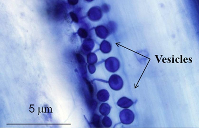 Arbuscular--mycorrhizal-structures