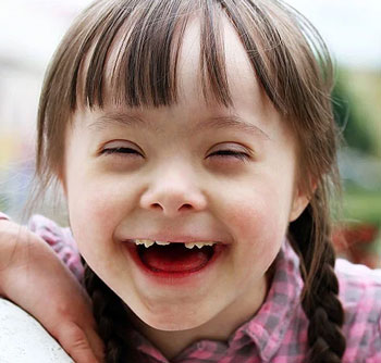 down-syndrome-child