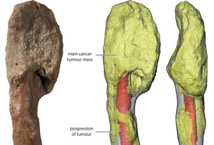 cancerous-tumor-dinosaur-bone